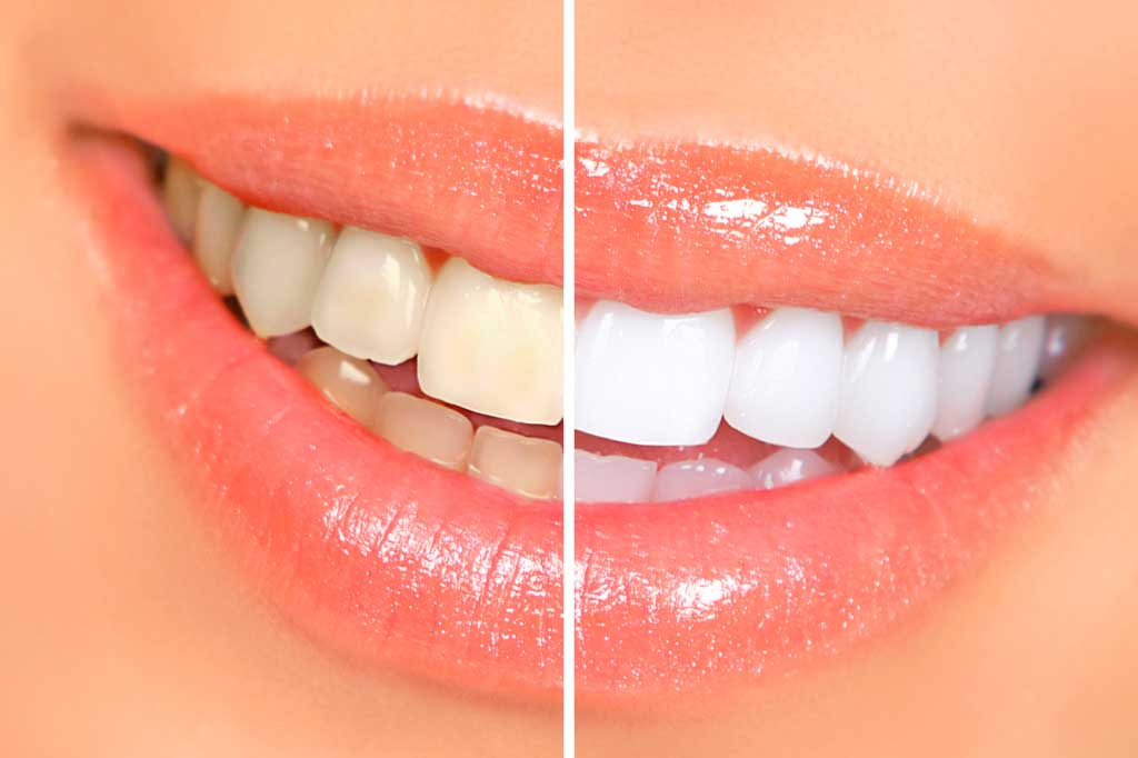 teeth-whitening-albany-place-dental