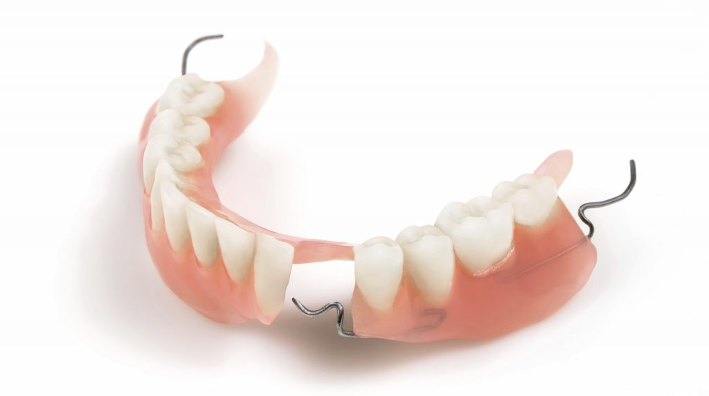 Lower denture with braces on a white background. Horizontal position.